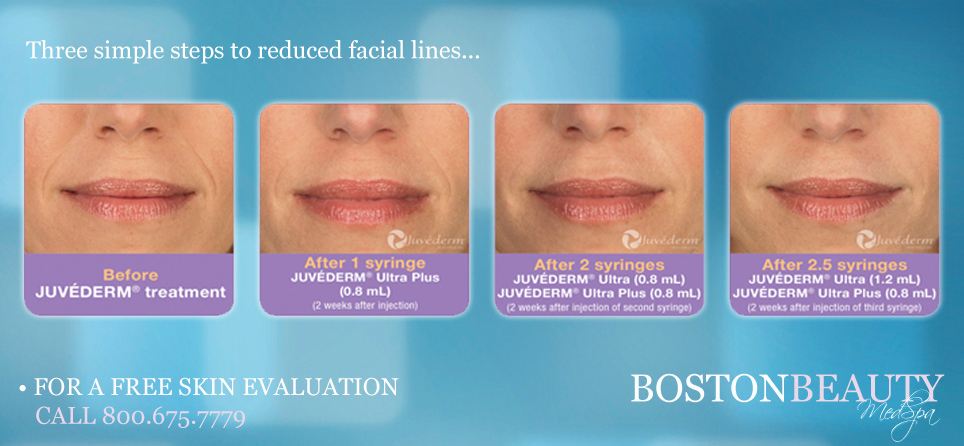 Juvederm Boston
